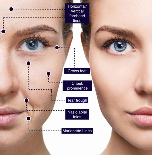The process of skin aging